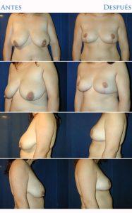 reducción de mamas y lolas
