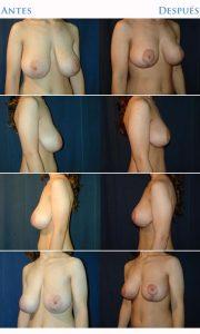 levantar las mamas